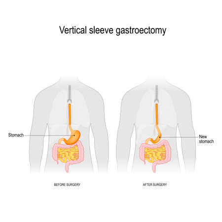 Vertikale Sleeve-Gastroektomie. vor und nach der Operation. Gewichtsverlust Chirurgie. Vektordiagramm für pädagogische, medizinische, biologische und wissenschaftliche Zwecke Vektorgrafik