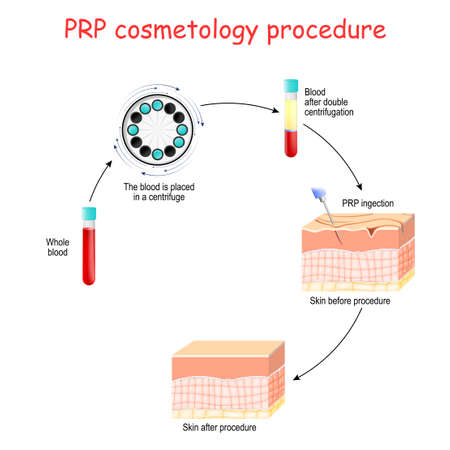 PRP cosmetology procedure. test tubes and syringe with blood and platelet-rich plasma. Vector diagram for educational, medical, biological and science use Illustration