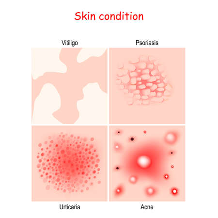 Skin condition and diseases. Close-up of Acne, Urticaria, Psoriasis, Vitiligo. vector diagram for education, medical, science use