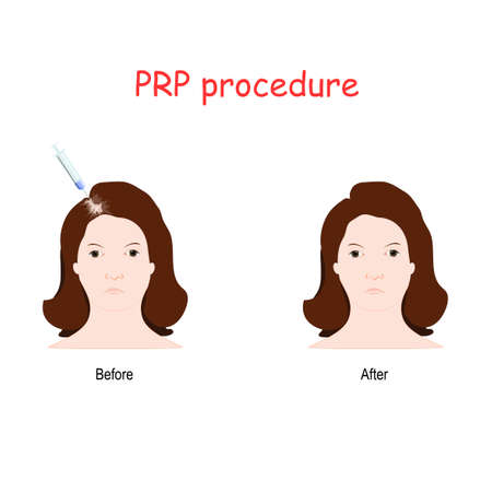 Platelet rich plasma (PRP) injection. Procedure for Female alopecia treatment. surgeon takes a patients blood, removes the erytrocytes and plasma, then injects PRP just under the scalp where hair growth is desired.