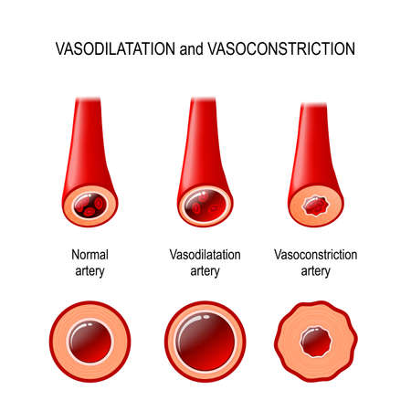 vasodilation and vasoconstriction. A comparison illustration of a normal, constricted, and dilated blood vessels