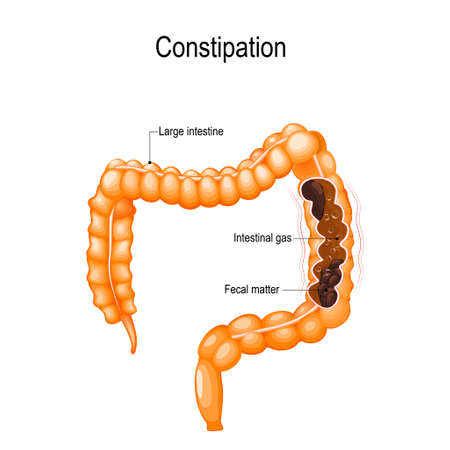 Constipation. human large intestine with fecal matter and bowel gas bubbles. Vector illustration represent for medical and educational use.