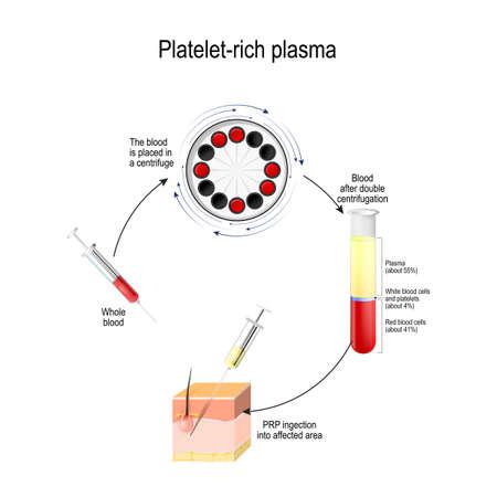 Bloedplaatjesrijk plasma. PRP is een medische procedure voor stimulatie van de haargroei. Menselijke huid, met plasma gevulde spuit en reageerbuis met witte bloedcellen na centrifugeren. Vector Illustratie