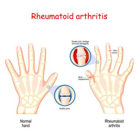 La polyarthrite rhumatoïde (PR). Main saine et main atteinte de polyarthrite rhumatoïde et gonflement et déformation typiques des articulations des doigts et des jointures. Maladie auto-immune, type d'arthrite inflammatoire qui affecte généralement les articulations. anatomie osseuse. illustration vectorielle à usage médical