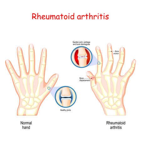Rheumatoid Arthritis (RA). Healthy hand, and hand with rheumatoid arthritis and typical joint swelling and deformation of the fingers and knuckles. Auto immune disease, inflammatory type of arthritis that usually affects joints.  bone anatomy. vector illustration for medical use