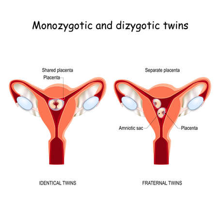 Twins in uterus. Monozygotic and Dizygotic. fraternal  and identical twins. separate and shared placenta