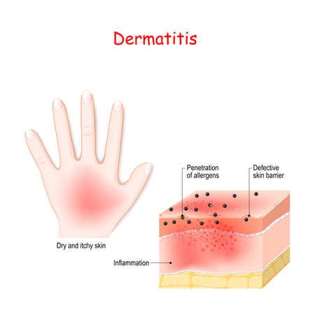 Dermatite. Eczema atopico. Primo piano della sezione trasversale della pelle umana con dermatite. penetrazione degli allergeni. Illustrazione vettoriale per uso medico, biologico ed educativo Vettoriali