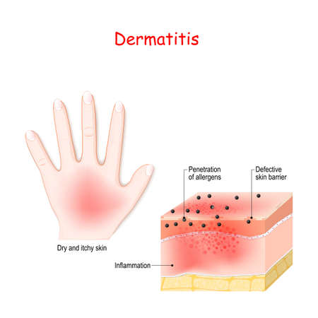 Dermatitis. Atopic eczema. Close-up of  Cross-section of human skin with dermatitis. penetration of allergens. Vector illustration for medical, biological, and educational use