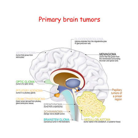 Brain cancer. different types of primary brain tumors. They categorized by the type of cell where the tumor begins.