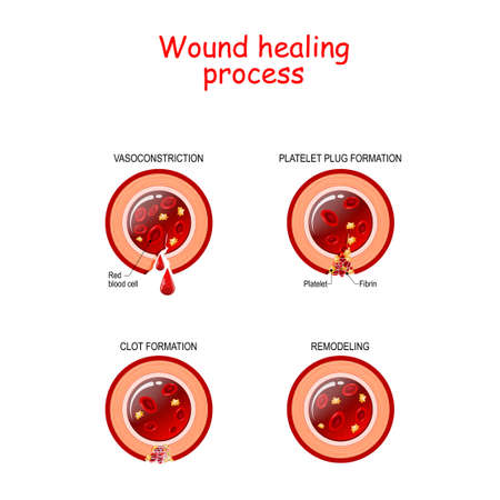 Phases of the wound healing process. Hemostasis, Inflammatory, Proliferative, Maturation and remodeling phase. Cross section of blood vessel.