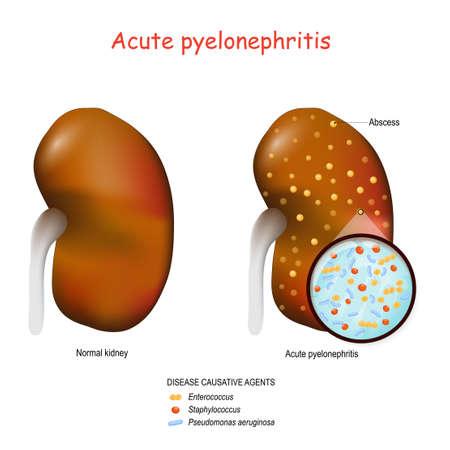 Akute Pyelonephritis. Normale Niere und Niere mit Abszessen. Nahaufnahme von Bakterien, die diese Krankheit verursachen. Erreger: Staphylococcus, Enterococcus und Pseudomonas aeruginosa