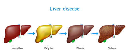 Liver disease. From healthy internal organ to Fatty liver (hepatic steatosis), fibrosis, and Cirrhosis. Vector Illustration for Medical and Education use. Illustration