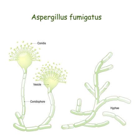Aspergillus fumigatus is a type of fungus causes aspergillosis (invasive fungal infection in the lung in immunosuppressed individuals). pathogenic flora.