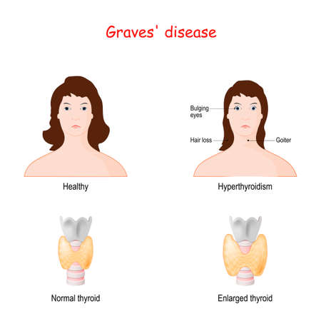 Graves disease. toxic diffuse goiter. autoimmune disease that affects the thyroid. Two Faces of adult females. Healthy woman and face with  labeled symptoms of hyperthyroidism. Normal and enlarged thyroid gland Illustration