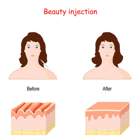 beauty injection. dermal filler. hyaluronic acid or bottox injection. face and skin before and after procedure