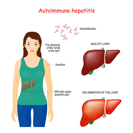Autoimmune hepatitis. autoimmune disease when immune system attacks liver cells causing the liver to be inflamed. Vector illustration for medical use Stok Fotoğraf - 137697086