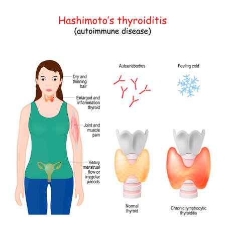 Tiroiditis de Hashimoto. La tiroiditis linfocítica crónica es una enfermedad autoinmune en la que la glándula tiroides se destruye gradualmente. Ilustración vectorial. Esquema médico etiquetado