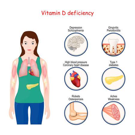Mangel an Vitamin D. Menschlicher Körper und Nahaufnahme von Organen mit Mangelerscheinungen. Symptome und Krankheiten. medizinische Vektorillustration. beschriftetes Diagramm mit Diagnose. Infografiken Vektorgrafik