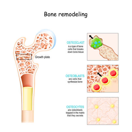 bone remodeling process (resorption, reversal, formation, and mineralization). Osteoblast, osteoclast, and osteocyte. Vector illustration of human bone cell types. Medical diagram.