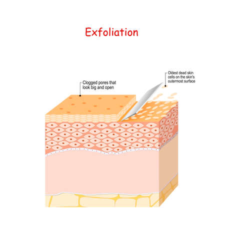Exfoliation. Peeling or Physically scrubbing. Skin Care. Close up Of Peeling procedure. Cosmetology. Exfoliation is removal of the old dead cells on the skin's outer surface. Cross-section of skin layers
