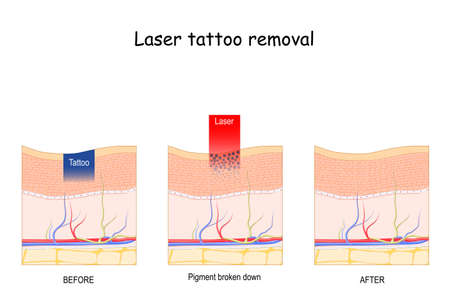Laser tattoo removal. Dark paint absorb light and break down. vector illustration diagram. Cosmetic dermatology.