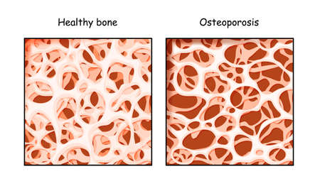 Healthy bone and Osteoporosis in comparison isolated on a white background. disease of bones that leads to an increased risk of fracture. low density calcium. Vector illustration for medical, educational or scientific graphic design.