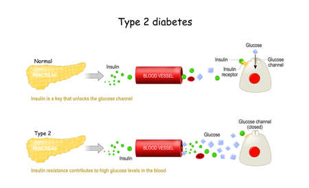 Types 2 of Diabetes Mellitus. Comparison of cell work in diabetes and in a healthy body. Insulin resistance contributes to high glucose levels in the blood. Insulin is a key that unlocks the glucose channel. Infographic. Vector illustration