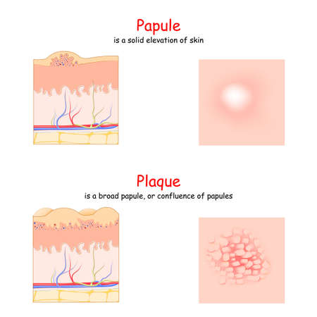 Skin lesion. Papule and Plaque. side and top view. Cross section of the human skin. Papule is a solid elevation of skin. Plaque is a broad papule.