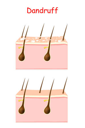 Dandruff on hair before and after Treatment. seborrheic dermatitis can occur due to dry skin, bacteria and fungus on the scalp. It causes formation of dry skin flakes. Vector illustration for poster, banner, beauty clinic, cosmetic and skin care use. Ilustracja