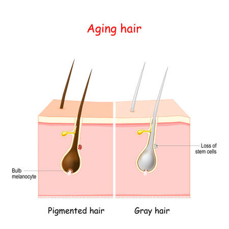 aging process through gray hair. Pigmented and gray hair. The stem cells at the hair follicles produce melanocytes, that produce and store pigment. The death of the melanocyte stem cells causes the onset of graying.