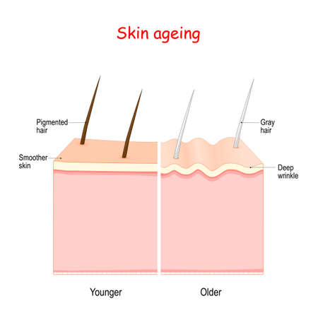 aging process. From Smoother younger skin with Pigmented hair to older skin with Deep wrinkle and gray hair.