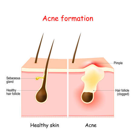 Acne. Inflamed pimple on the skin. The sebum in the clogged pore promotes the growth of a bacteria. vector illustration. dermatology diagram.