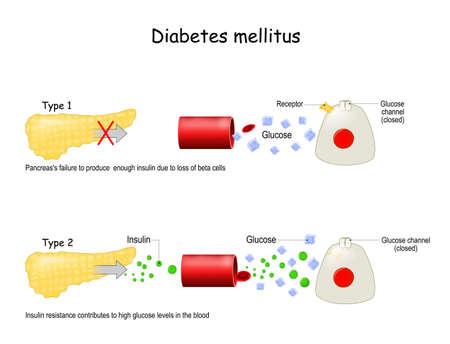 Types of diabetes mellitus.