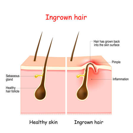 Ingrown hair after hair removal and shaving. buried hair. structure of the hair follicle. Vector illustration