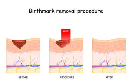 Birthmark laser Removal. Treatment. Before and after procedure
