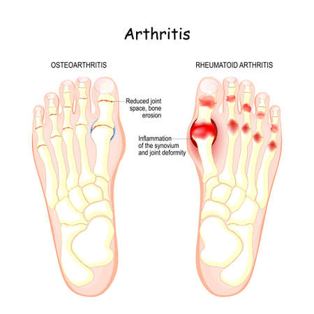 osteoarthritis, rheumatoid arthritis, and posttraumatic arthritis. comparison of human foot with different forms of arthritis. inflamed synovium and joint deformity
