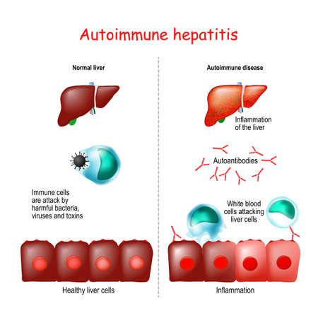 Autoimmune hepatitis. Healthy liver (Immune cells are attack by harmful bacteria, viruses and toxins). Autoimmune disease (White blood cells attacking liver cells cause Inflammation liver)