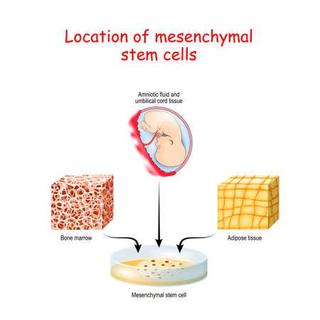 Location of mesenchymal stem cells. Bone marrow, Adipose tissue, Amniotic fluid and umbilical cord tissue. Vector illustration