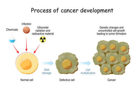 process of cancer development. Cancer causing agents and the stages of transforming normal cell to Defective cell and cancer. Genetic changes and uncontrolled cell growth leading to tumor formation