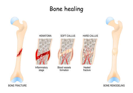 Bone healing Process after a bone fracture. Stages Of Bone Healing. Vector diagram