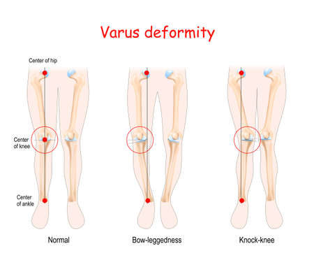 valgus deformities. healthy joint, knock-knee and Bow-leggedness. Human legs, bones and joints.