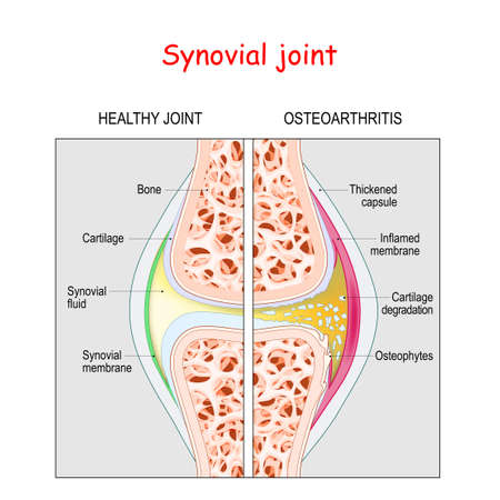 Osteoarthritis. Healthy Synovial joint and knee with Arthritis or pain. degenerative joint disease. Cartilage becomes worn. This results in inflammation, swelling, and pain