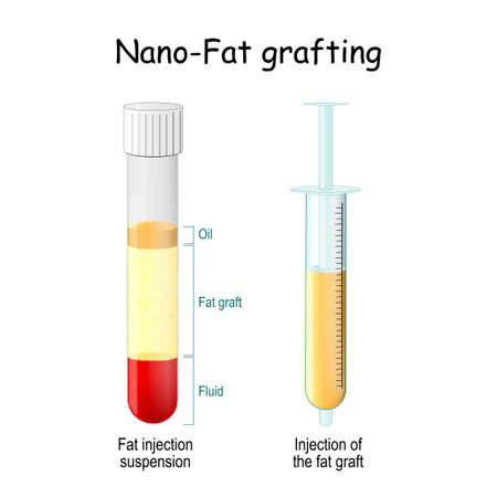 Nano-Fat grafting. test tube with Fat injection suspension. syringe with Injection of the fat graft. New anti aging therapy. Treatment for Acne, Scar and other Skin problems. beauty anti-wrinkle injections.
