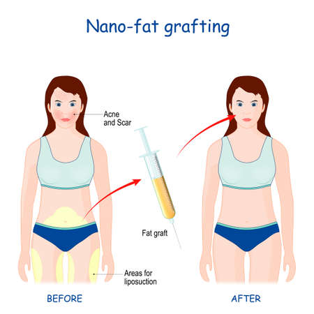 Nano-Fat Grafting use to fix problems with skin (wrinkles, scars, acne). Иллюстрация