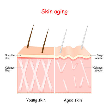 aging process in the skin. age related changes. collagen and wrinkles