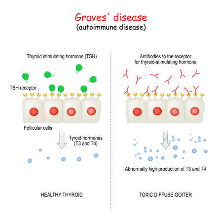 Graves' disease. autoimmune disorder. toxic diffuse goiter and cell of healthy thyroid gland. explanation about Abnormally high production hormones of thyroid gland (T3 and T4).