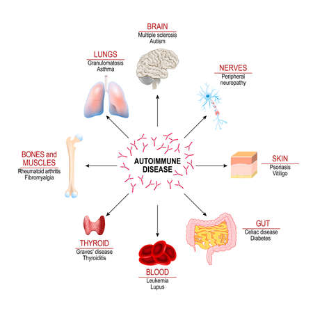 Tissues of the human body affected by autoimmune attack. Vector diagram for your design, educational, medical, biological and science use