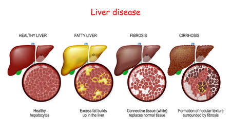 Liver diseases. Stages of liver damage from healthy liver to fatty, fibrosis, and cirrhosis. Close-up of histology