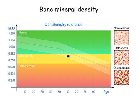 Bone mineral density (BMD). Densitometry reference (chart). close-up of condition of bone tissue from healthy to Osteopenia and osteoporosis. Aging process. vector illustration