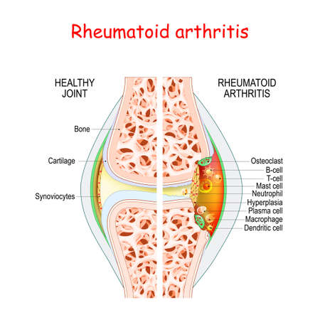 Rheumatoid arthritis. Healthy and damage joint. Close-up of bone, cartilage, and Cells in a joint capsule: synoviocytes, osteoclast, neutrophil, T lymphocyte, B-cell, macrophage, mast, plasma, and dendritic cell, Иллюстрация